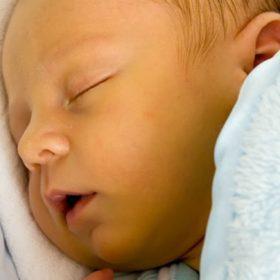 recem-nascido com amarelão
