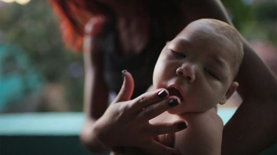 microcefalia doença causada pela zika na gravidez