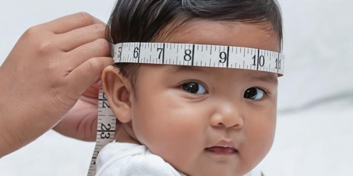 mensurando a cabeça do bebê para acompanhamento da hidrocefalia